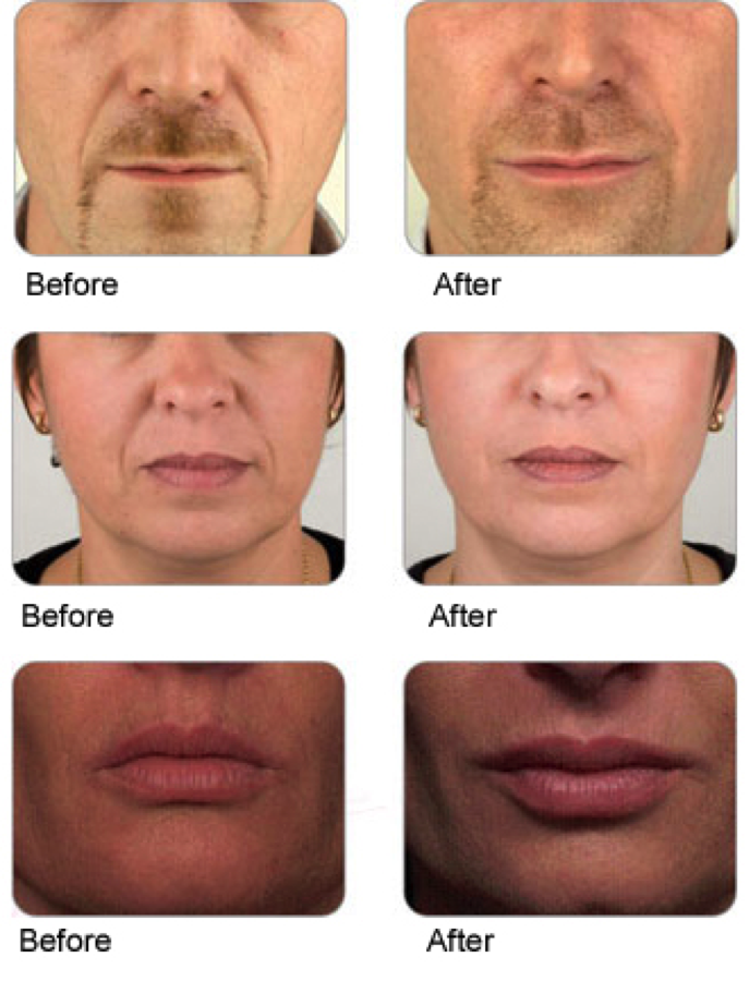Dermal Fillers Anti Wrinkle and Line Treatment, Barnstaple, North Devon